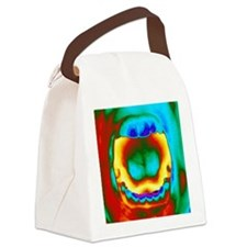 Thermogram of a woman's mouth and Canvas Lunch Bag