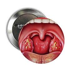 """Tonsillitis 2.25"""" Button"""