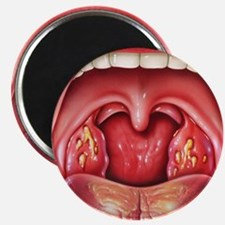 Tonsillitis Magnet