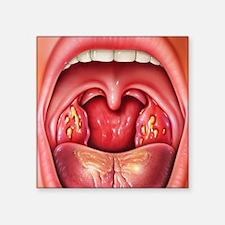 "Tonsillitis Square Sticker 3"" x 3"""