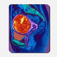 Uterine fibroid, MRI scan Mousepad