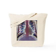Thalassaemia, X-ray Tote Bag