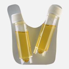 Urine samples Bib