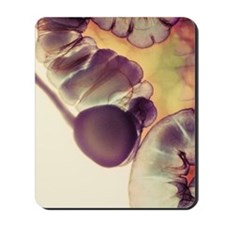 X-ray of appendix Mousepad