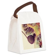 X-ray of appendix Canvas Lunch Bag