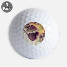 X-ray of appendix Golf Ball