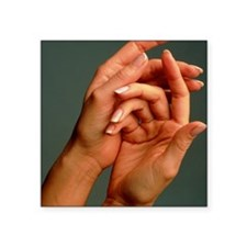 """View of the healthy hands o Square Sticker 3"""" x 3"""""""