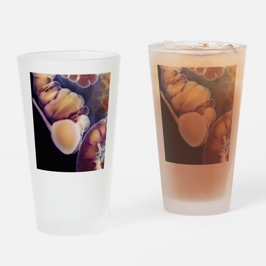 X-ray of appendix Drinking Glass