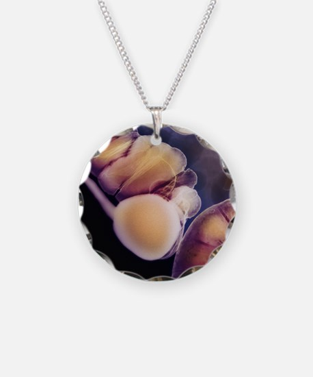 X-ray of appendix Necklace