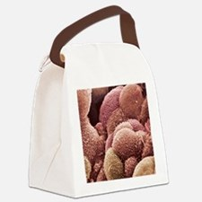 Ovarian cancer cells, SEM Canvas Lunch Bag