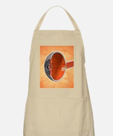 Retinal implant, artwork Apron