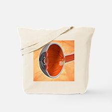 Retinal implant, artwork Tote Bag