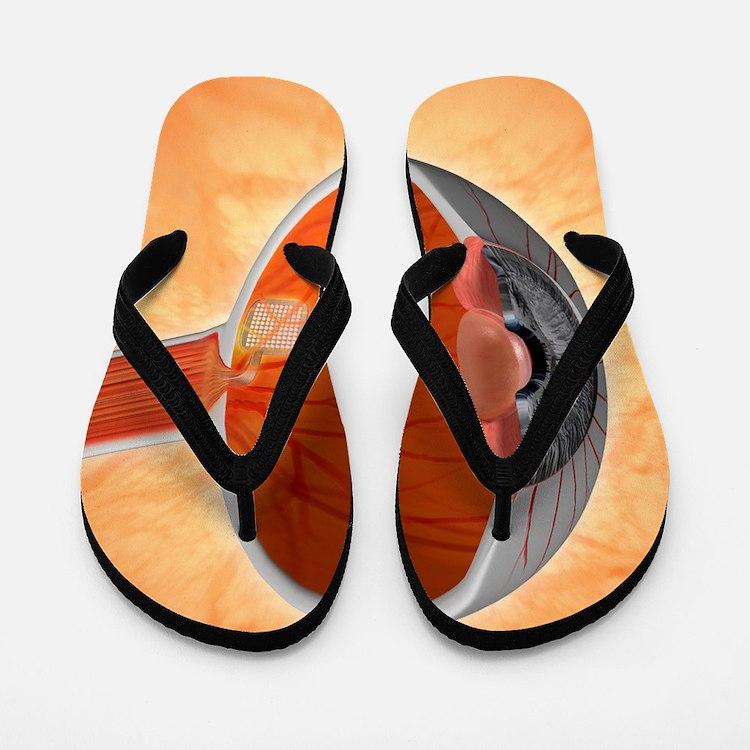 Retinal implant, artwork Flip Flops