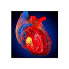"""Structure of a human heart, Square Sticker 3"""" x 3"""""""