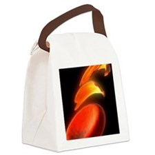 Sickle cell anaemia, artwork Canvas Lunch Bag