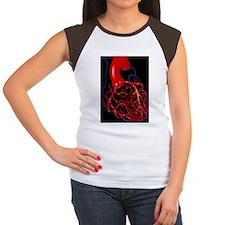 Angina pectoris Women's Cap Sleeve T-Shirt