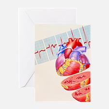 Artwork of heart Greeting Card