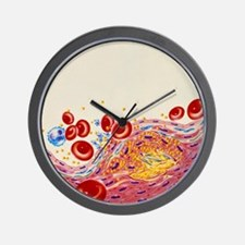 Artwork of artery narrowed by atheroscl Wall Clock
