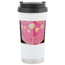 Artwork of eczema in section of Travel Mug