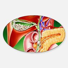 Artwork of gallstones in gall bladd Sticker (Oval)