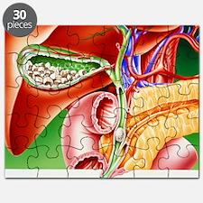 Artwork of gallstones in gall bladder Puzzle
