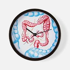 Artwork of irritable bowel syndrome Wall Clock