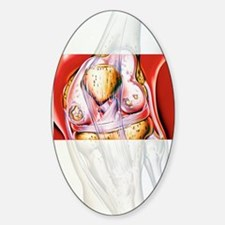 Artwork showing rheumatoid arthriti Sticker (Oval)