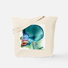 Complete loss of teeth, X-ray Tote Bag