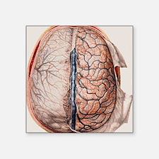 """Brain meninges Square Sticker 3"""" x 3"""""""