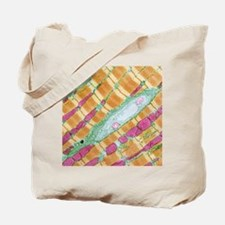 Cardiac muscle, TEM Tote Bag