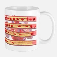 Coronary artery disease Mug