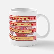Coronary artery disease Small Mugs