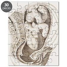 Foetus in the uterus during labour Puzzle