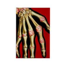 Illustration of rheumatoid arthri Rectangle Magnet