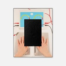 Iontophoresis for excess sweating Picture Frame