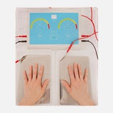 Iontophoresis for excess sweating Throw Blanket
