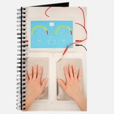 Iontophoresis for excess sweating Journal