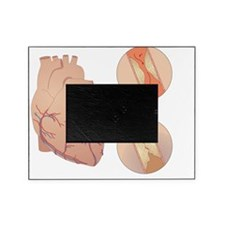 Heart disease Picture Frame
