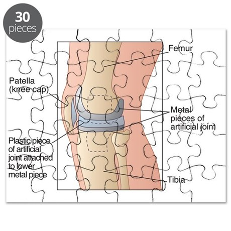 Knee replacement, artwork Puzzle