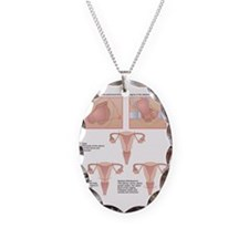 Hysterectomy, artwork Necklace