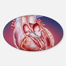 Heart after heart attack Bumper Stickers