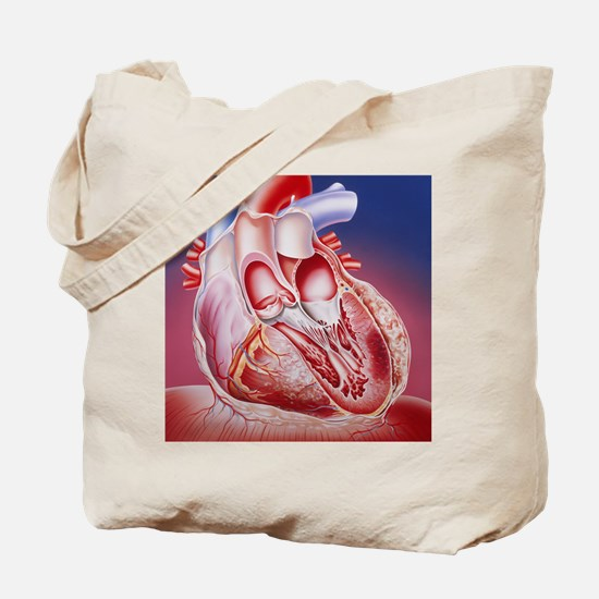 Heart after heart attack Tote Bag
