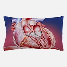 Heart after heart attack Pillow Case