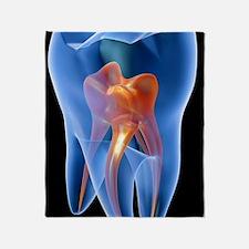 Molar tooth Throw Blanket