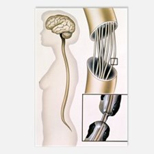 Multiple sclerosis Postcards (Package of 8)