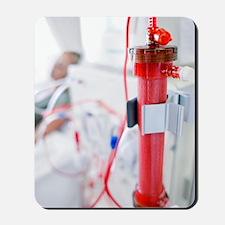 Kidney dialysis Mousepad