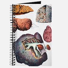 Liver cirrhosis Journal