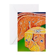 Illustration of septal cirrhosis of  Greeting Card