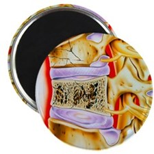 Osteoporitic spine Magnet
