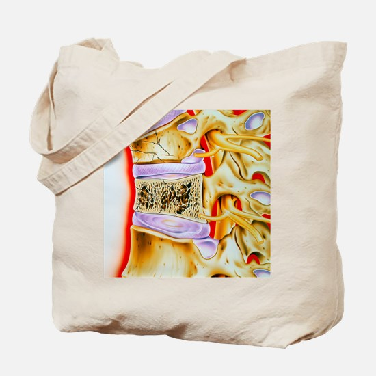 Osteoporitic spine Tote Bag